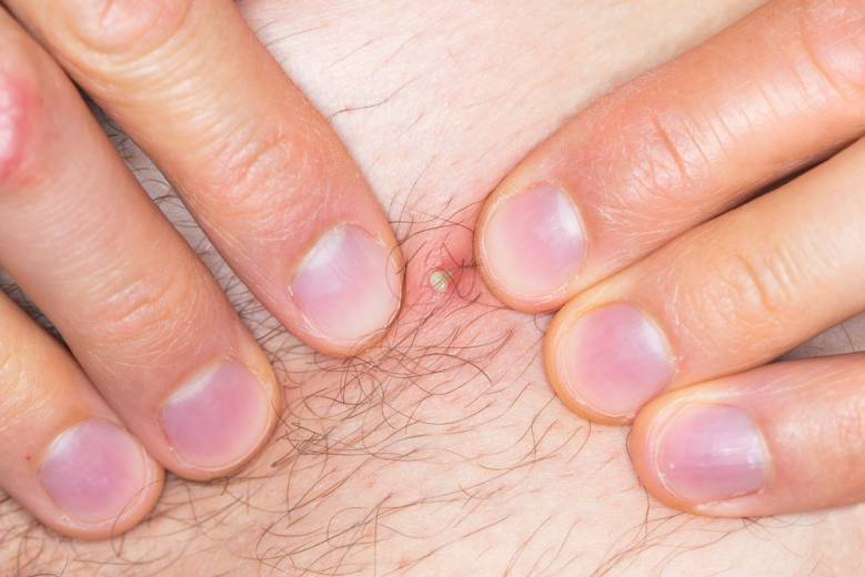 Ingrown hair meaning, signs, causes, treatments an remedies