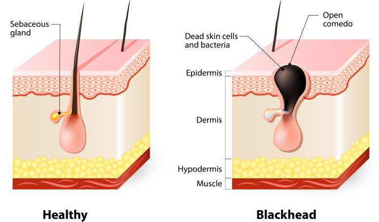 Skin without and with a blackhead
