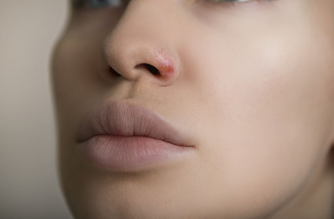 Sores in nose causes, herpes, treatments and remedies