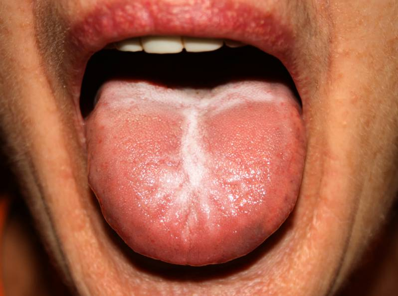 Itchy tongue due to yeast infection