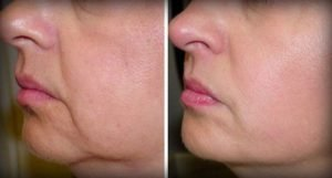 Before and after - loose skin on face