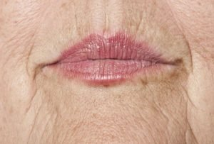 Causes of wrinkled lips and how to manage them