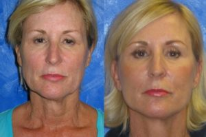 Loose skin on neck before and after - Image courtesy of Fisher Cosmetic Facial Surgery