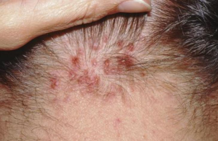 Pictures Causes And Treating Red Bumps On Scalp Best
