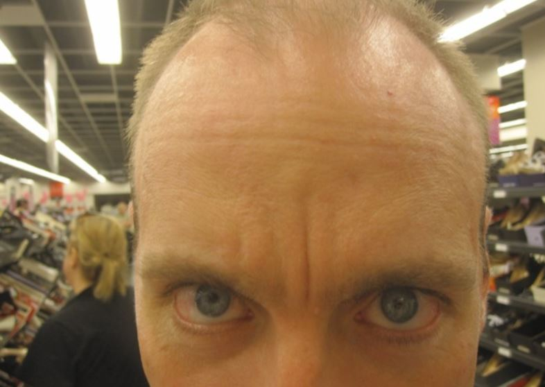 Why Do I Have a Dent on My Forehead? | Best Daily Guide