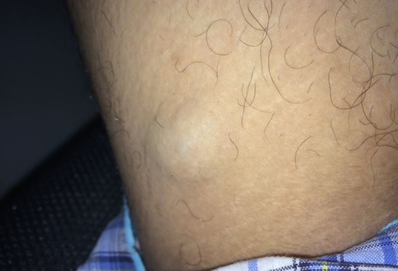 Lump On Inner Thigh Near Groin In Male Or Female Best Daily Guide