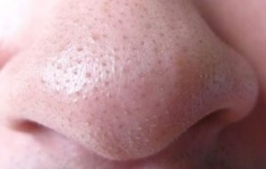 Clogged nose pores - whiteheads or blackheads causes