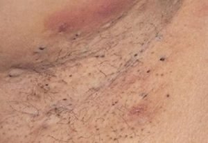 How to get rid of armpit blackheads